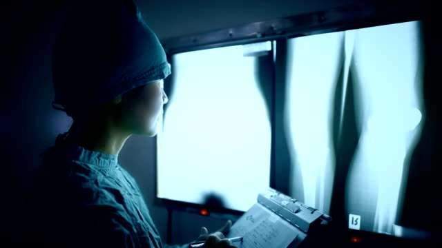 Doctor reading X-Rays pointing with a pencil