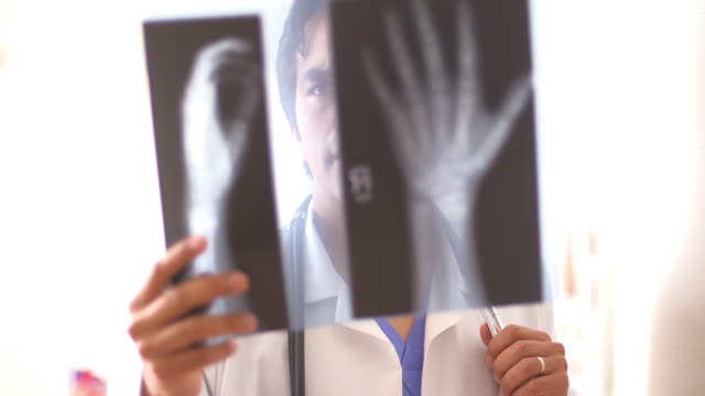 doctor reviewing hand x-rays