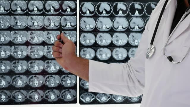 Arts toont een ziekte op een X-Ray-afbeelding.