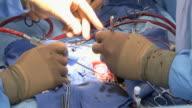 CU  Doctors doing childs heart surgery /  Little Rock, Arkansas, USA