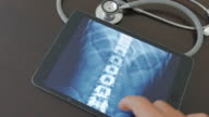 Doctors examining x-ray image on a digital tablet,Close-up