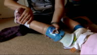 Double amputee Ellie Challis learns to walk using carbonfibre blades T10030630 INT Ellie crawls along floor Prosthetic leg pushed into harness and...