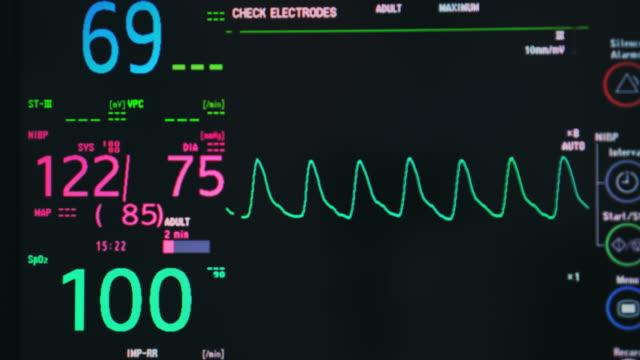 ECG,Loopable