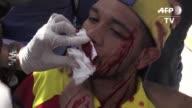 El violinista y manifestante opositor Wuilly Arteaga resulto herido el sabado cuando militares bloquearon una marcha en Caracas en respaldo a 33...
