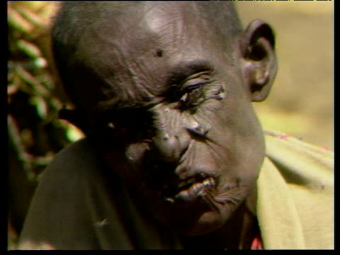 Elderly Ethiopian with flies swarming over face Oct 84