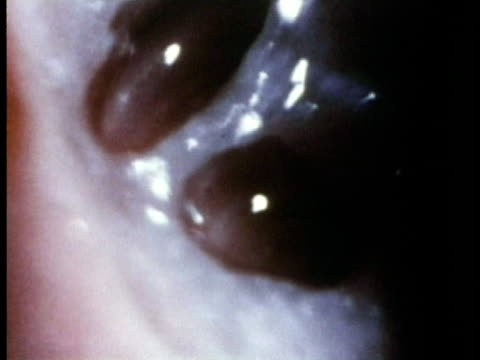 1969 Endoscopic view of cochlear fluid in tubes within the cochlea of the human inner ear, moving in response to sound/ USA/ AUDIO