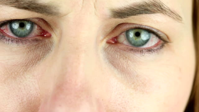 Extreme Close Up Of Red Irritated Eyes