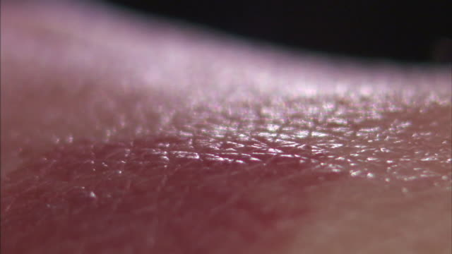 Extreme Close Up pan-right - Two bed bugs feed on a human arm.