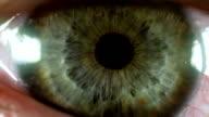 Auge Makro