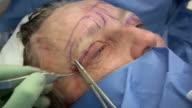 Facelift operation, clip 22 of 24. The surgeon has removed a flap of skin from the eyelid and is now sewing the two edges together, which will give a tighter appearance. This is the blepharoplasty stage of the operation