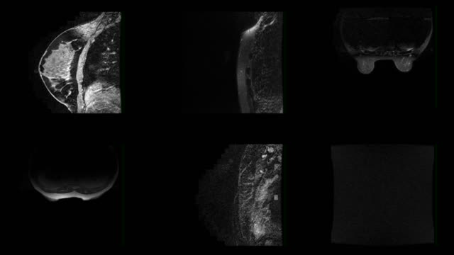 Female Breast MRI Scan