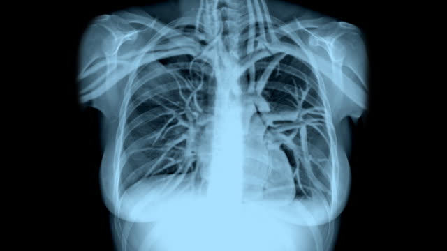 Female Chest X-Ray with Breathing and Heartbeat