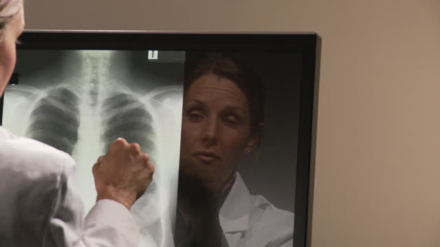 CU PAN Female doctor examining chest x-ray on computer screen / Atlanta, Georgia, USA