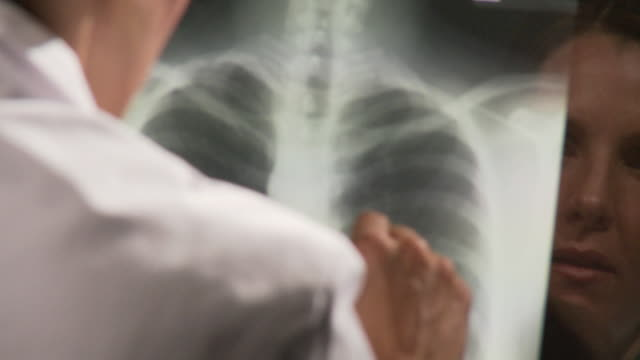 ECU PAN Female doctor examining chest x-ray on computer screen / Atlanta, Georgia, USA