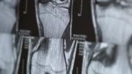 Weiblich Arzt überprüfen Sie die Magnetresonanztomographie Ergebnis