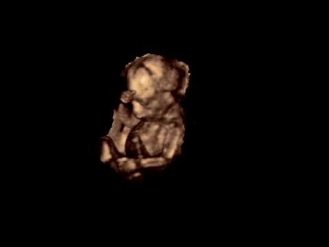 Foetus, rotating 3D ultrasound..