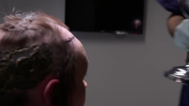 Footage of Nicola Trahearn having a robotic hair transplant procedure as one of the final steps in her transition from male to female undergoing the...