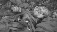 HA German Army casualty with facial wounds lying on the ground / France
