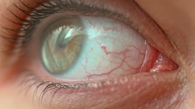 ECU Grey and hazel eye moving