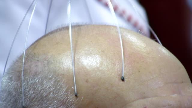Head treatment (HD)