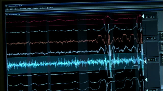 PAN Heart fibrillations recorded on a monitor