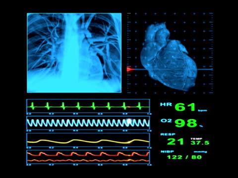 EKG Heart Rate Monitor Display