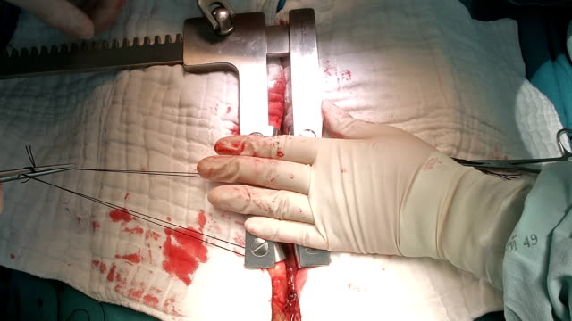 Heart Surgeon Apply Spreader