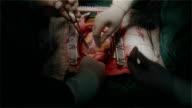 Cardiochirurgo controllo finale sutura anastomosi