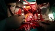 Cardiochirurgo aprire Atrio destro del cuore