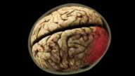 High Angle push-out - A computer-generated model of a human brain turns red.
