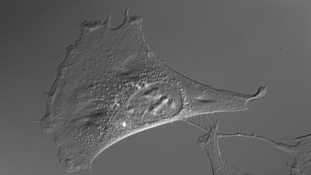 Human cell in culture