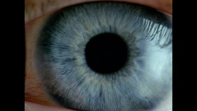Human eye - BCU blue eye, dilated pupil contracts, eyelid closes