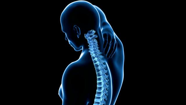 Human neck pain