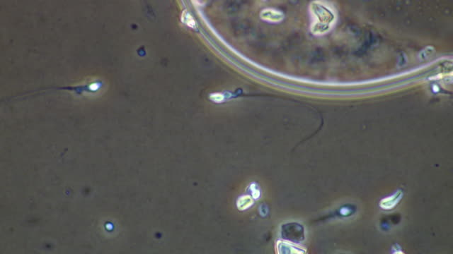 Human sperm swimming next to edge of egg-like mass