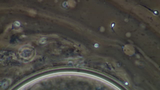 Human sperm, swimming, track with sperm to several sperm at edge of egg-like shere