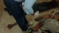 Injured people receive treatment at a field hospital after war crafts belonging to Syrian army bombed a bazaar in Ayn Tarma town in the eastern Gouta...
