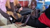 La escasez de alimento ha sumido a Sudan del Sur en una situacion que la ONU califico como emergencia o crisis en la que los casos reportados de...