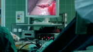 Laparoscopic Liver Resection process showed on screen