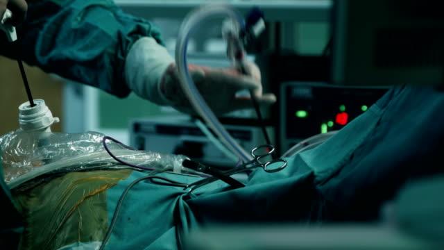 Laparoskopische Chirurgie. Arzt führt die Sonde in Trokar