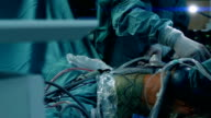 Laparoscopic surgery. Patient on operating table