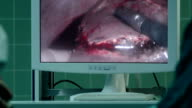 Laparoscopic surgery. Probe touching human liver showed on screen
