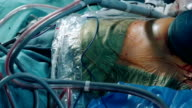 Laparoscopic surgery. Trocars and tubes on blue scrubs