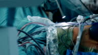 Laparoscopic surgery.Doctor introduces led into trocar in patient's abdomen