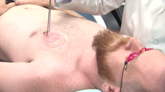 Laser Tattoo Removal on December 17 2013 in New York New York
