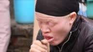 Malawi has launched an investigation into the root cause of a recent spate of murders of albinos as the country marks international albinism...