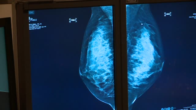 WGN Mammogram Results Displayed on a Computer Screen in Chicago on October 20 2015