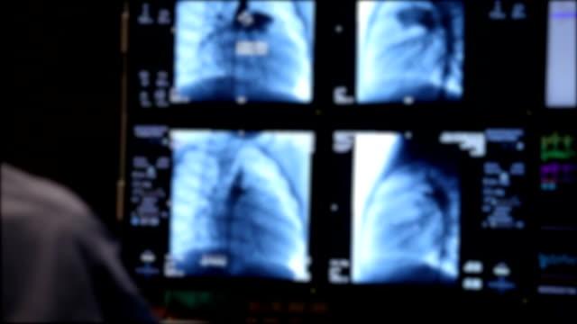 Mammographie-Ergebnisse auf dem Display aus Maschine, Extreme Nahaufnahme Ultraschall von Herz injiziert