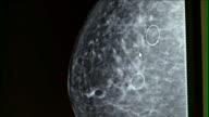 Mammogram X-Ray