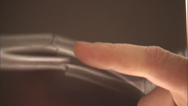 SLO MO, SELECTIVE FOCUS, ECU, Man's hand pointing on X-ray image of fractured human bone