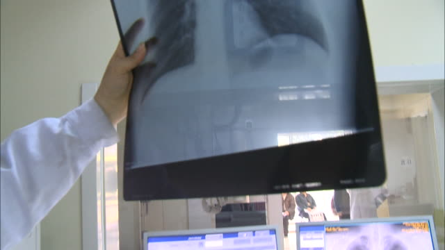 May 2 2010 PAN Medical personnel holding up a chest xray against the light / China